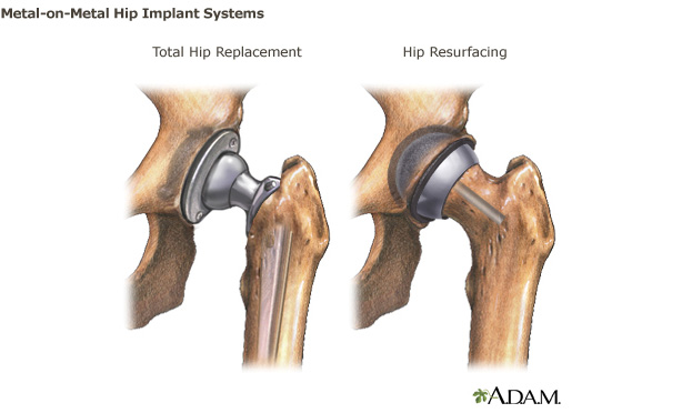 Hip Implant Surgery And Potential Lawsuits